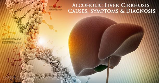 alcoholic-liver-cirrhosis