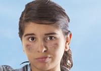 Treating Hyper pigmentation and Darkening of Skin in Women