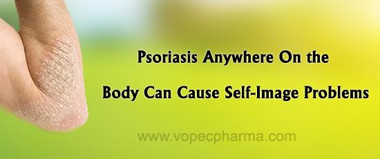 skin disorder Psoriasis