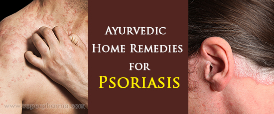 Ayurvedic Home Remedies for Psoriasis