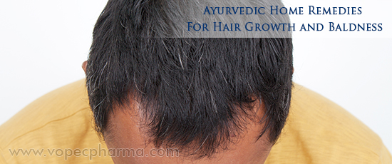 Ayurvedic Home Remedies for Baldness