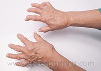 Arthritis & Joint Pain