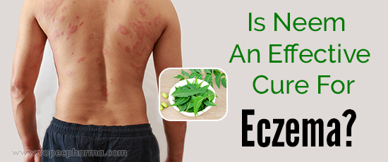 Is Neem An Effective Cure For Eczema
