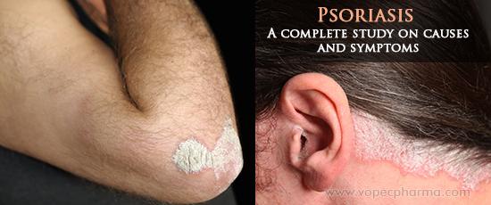 Psoriasis cause study