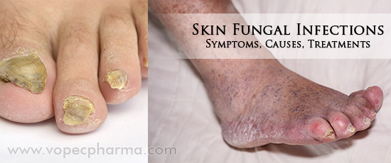 Oral medication for skin fungus